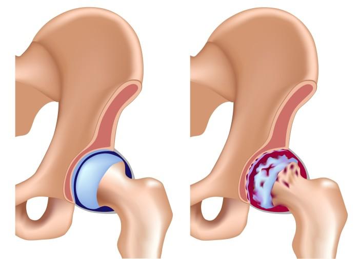 Периартрит тазобедренного сустава симптомы лечение отек ноги. Периартроз: симптомы, причины, лечение