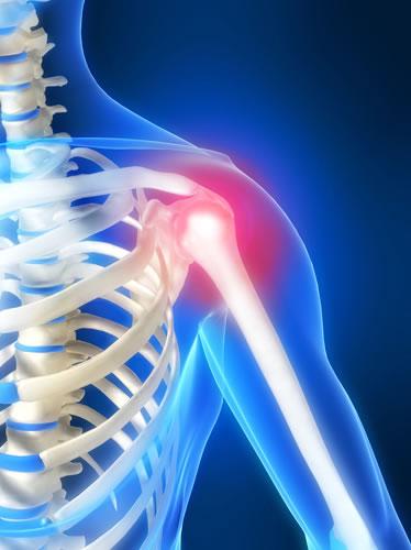 Плечелопаточный периартроз сустава: симптомы и лечение, что это такое