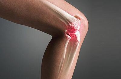 Остеохондроз коленного сустава лечение народными средствами