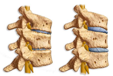 Спондилоартроз позвоночника - симптомы и лечение