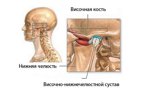 Артроз челюстного сустава (височно-нижечелюстного): лечение, симптомы остеоартроза