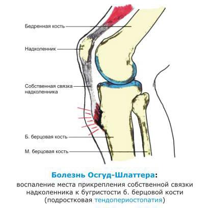 Болезнь Шляттера коленного сустава: диагностика и лечение