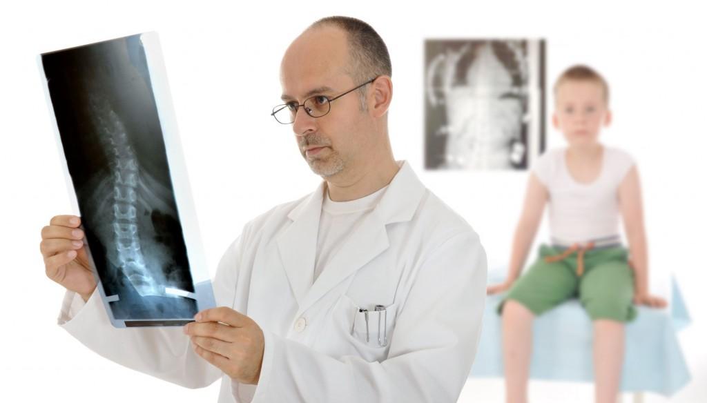 Сколиоз искривление позвоночника у детей причины и лечение