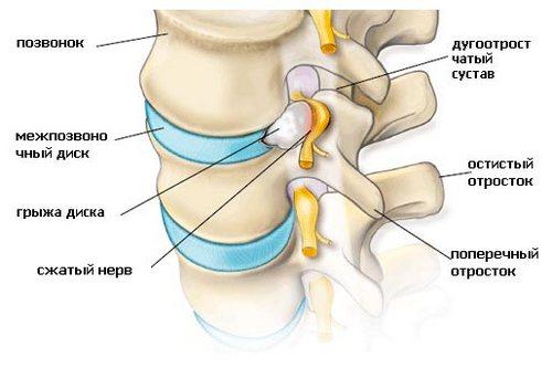 Корешковый синдром позвоночника - что это такое: лечение, симптомы. Как лечить шейный и грудной болевой синдром? Корешковый синдром код по мкб 10