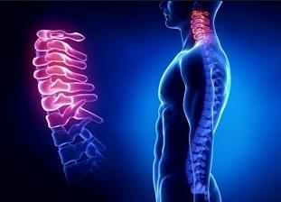 Цервикокраниалгия на фоне шейного остеохондроза лечение Боли при шейном остеохондрозе