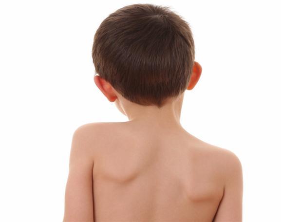 Массаж спины и гимнастика при сколиозе у детей