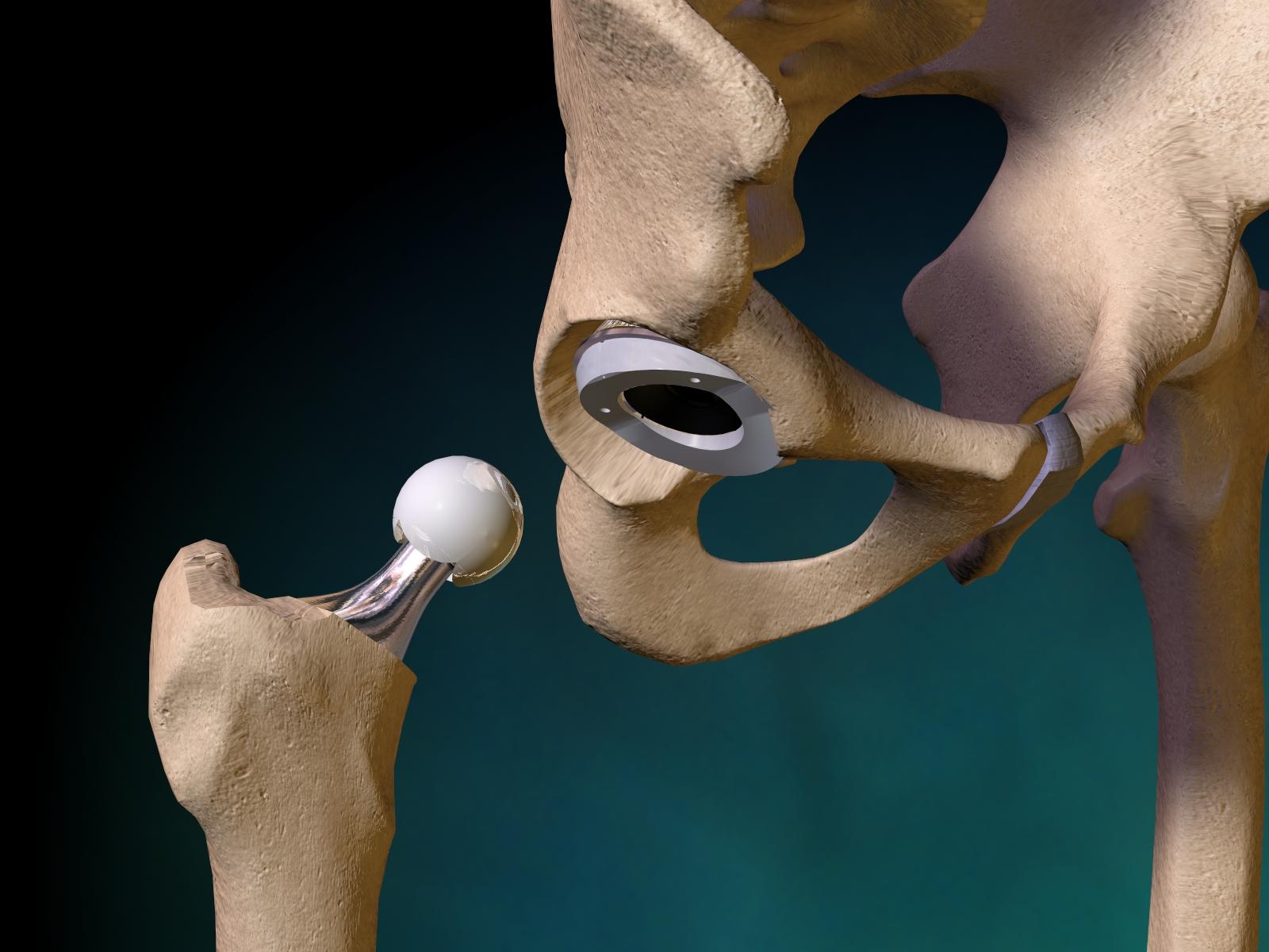 Сколько длится операция по замене тазобедренного сустава — Суставы