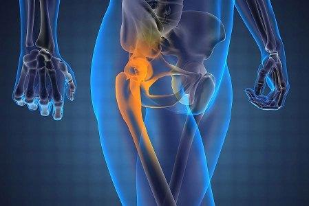 Тазобедренный сустав - симптомы болезни лечение