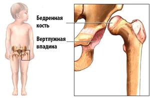 схема тазобедренного сустава у ребенка