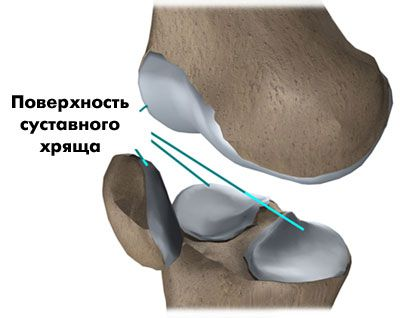 Какие препараты помогут восстановить хрящ коленного сустава