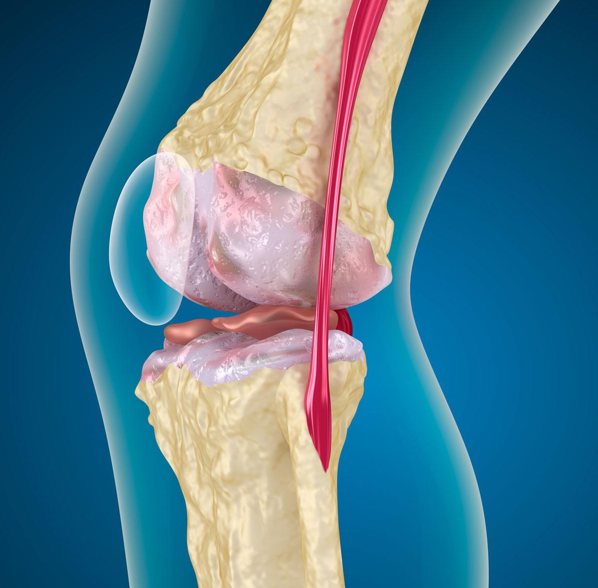 Остеоартроз коленного сустава 2 степени лечение и симптомы данной стадии