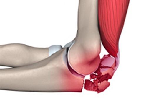Перелом головки локтевого сустава - Лечение Суставов