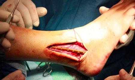 Операция перелом голеностопа