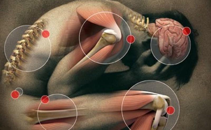 Ревматизм суставов – причины, признаки, симптомы, осложнения и диагностика. Как лечить ревматизм суставов?