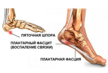 Пяточная шпора анатомия