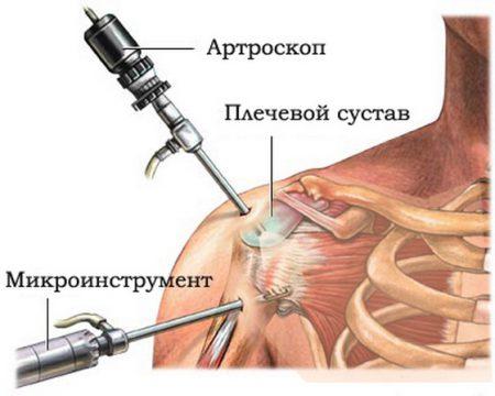 операция на суставе, схема