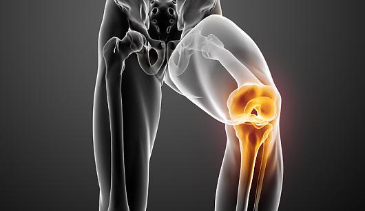 Как обнаружить и лечить синдром Гоффа коленного сустава