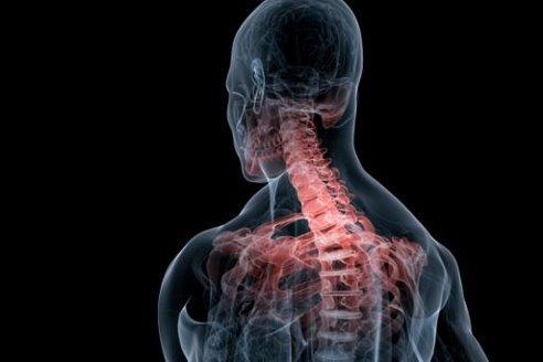 Сколиоз шейного отдела позвоночника - симптомы и лечение