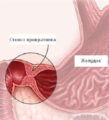 Стеноз привратника симптомы