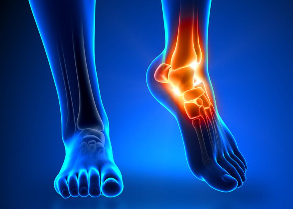Ушиб коленного голеностопного локтевого и других суставов как лечить
