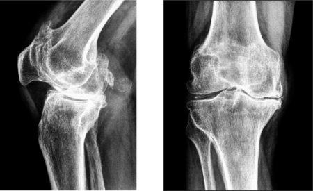 Рентген с контрастом