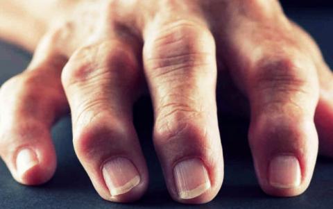 ревматоидный артрит суставов кистей рук