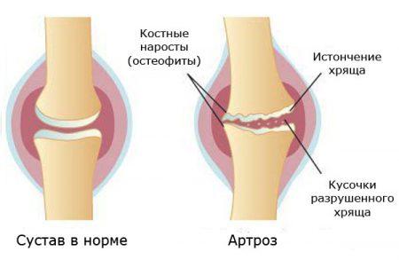 Что делать если болит сустав на ноге