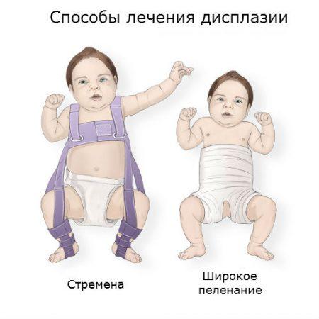 Изображение - Щелкает сустав у новорожденного displaziya-tazobedrennyx-sustavov-u-detej-3-450x450