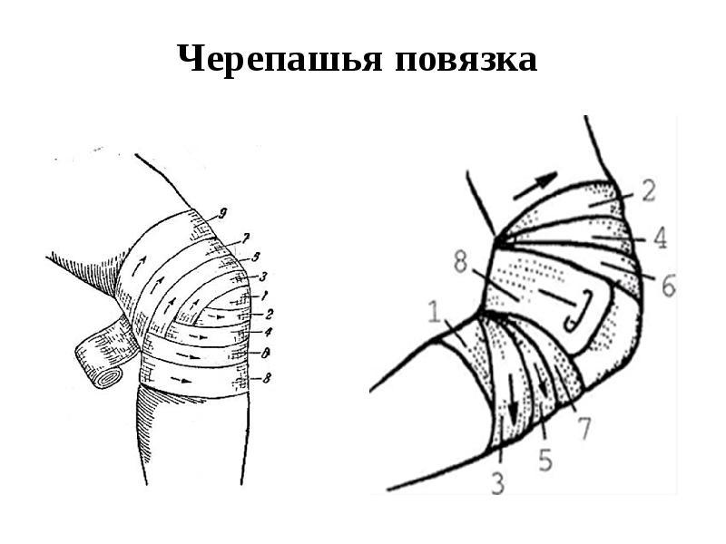 Техника наложения черепашьей повязки на локтевой сустав