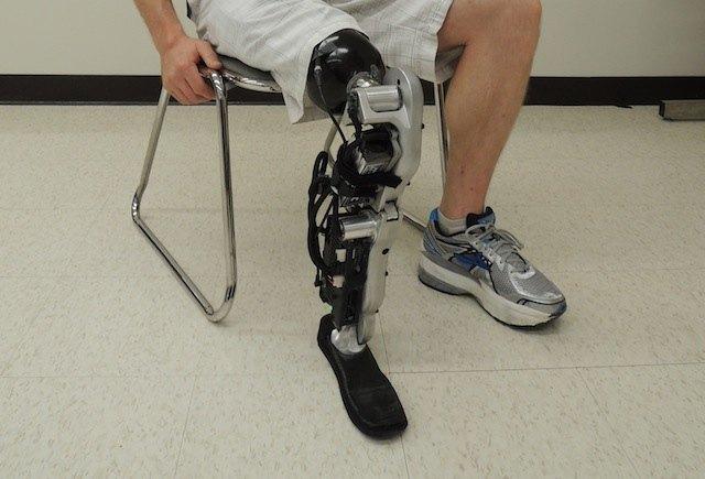 Реабилитация после ампутации ноги выше колена при сахарном диабете