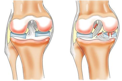 Народные средства для разработки суставов после перелома