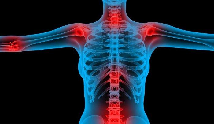 Болезни суставов как называются симптомы и лечение заболеваний
