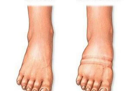 Опухают ноги ниже колен что делать