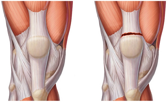 Лечение разрыва мышц коленного сустава фото