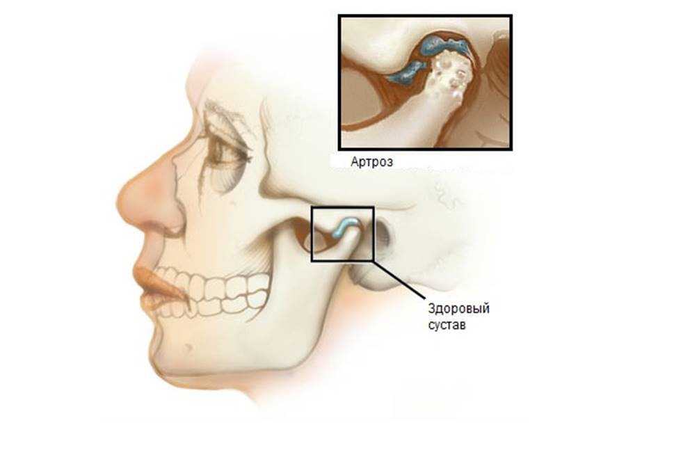 артриты височно нижнечелюстного сустава лечение