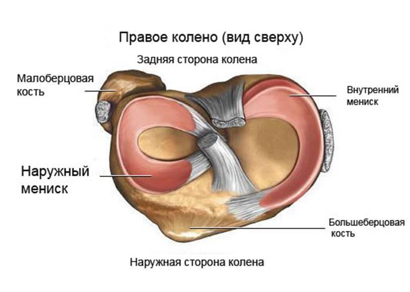 Степени повреждения внутреннего и медиального мениска по Stoller (2 и 3 степени)