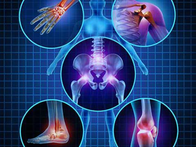 Боли в суставах: причины и как лечить. Как лечить суставы. Почему болят суставы и как их лечитьBagiraClub Женский клуб