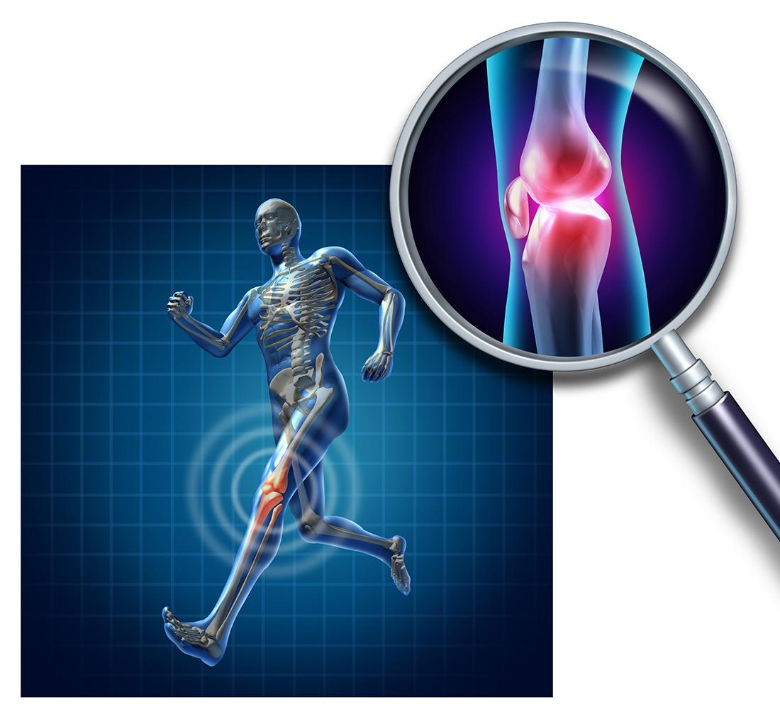 Надрыв связок коленного сустава симптомы