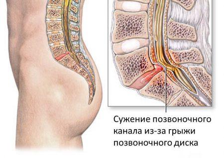 Спинальный стеноз