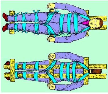 Оказание первой медицинской помощи при переломе позвоночника
