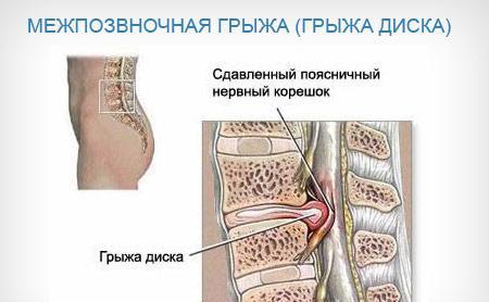 Защемление нервов поясничного или крестцового отделов позвоночника